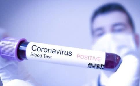 На Черкащині 20 медичних працівників захворіли на COVID-19